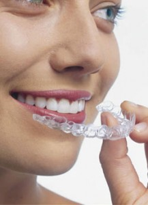 invisalign-invisible-braces